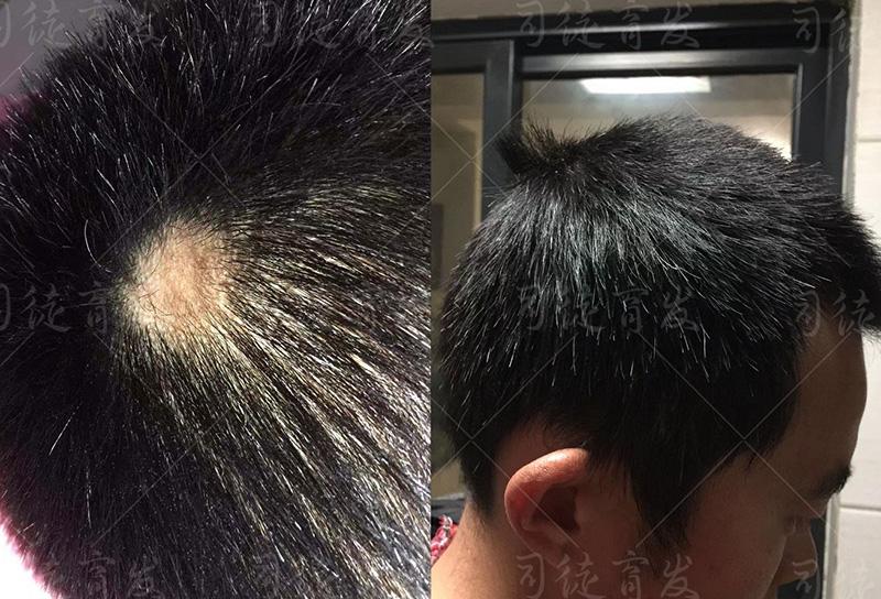 """日本男子""""增毛站""""祈求增发, 头秃了,身材胖了"""
