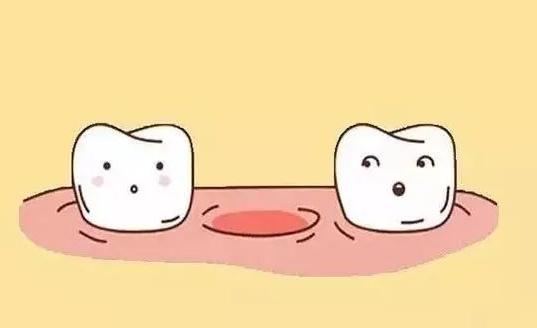 缺牙的后果真的那么严重吗 -优享国际